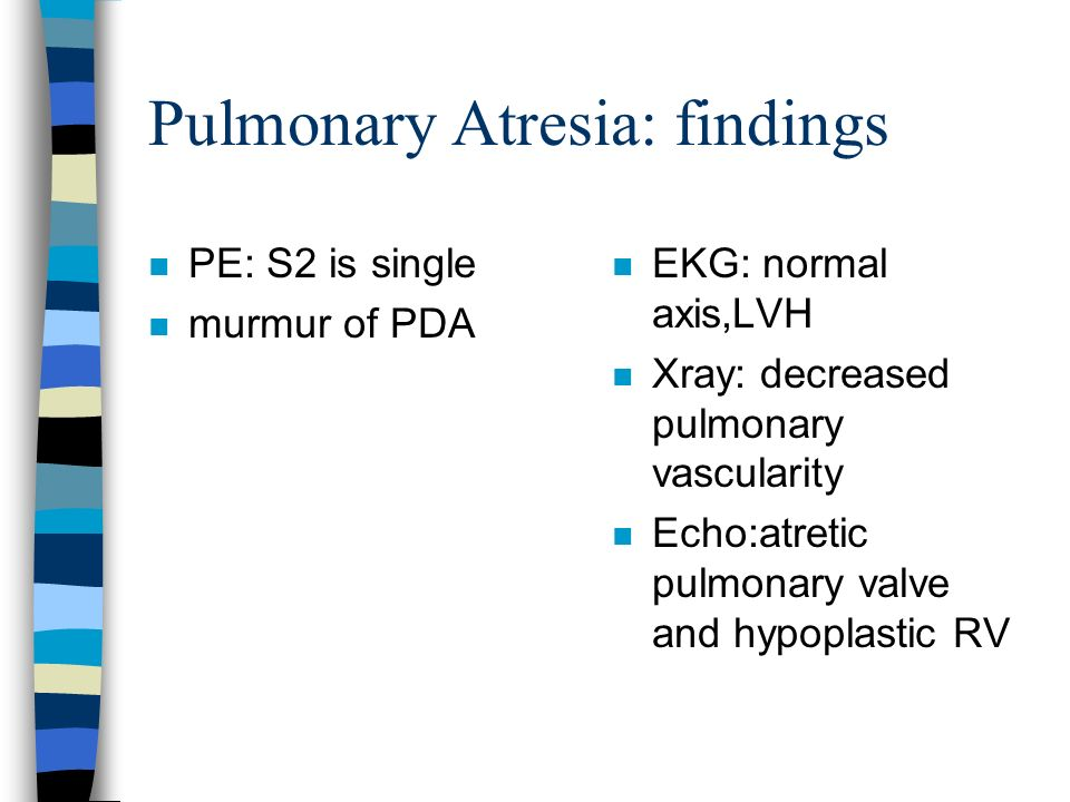 Pulmonary Atresia: findings