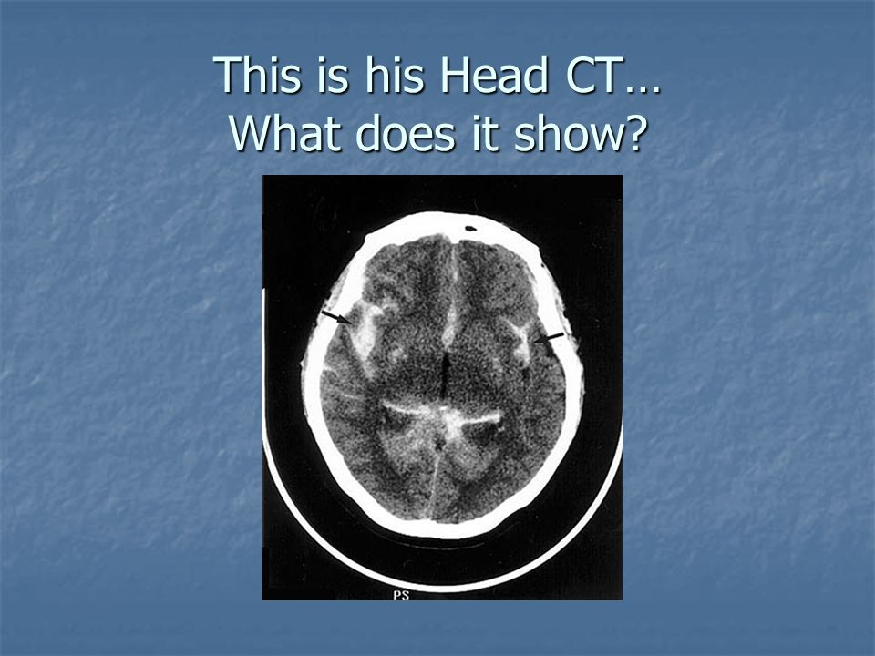This is his Head CT… What does it show