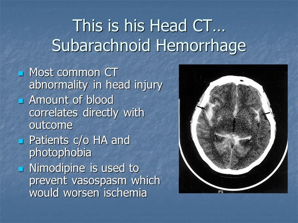 This is his Head CT… Subarachnoid Hemorrhage
