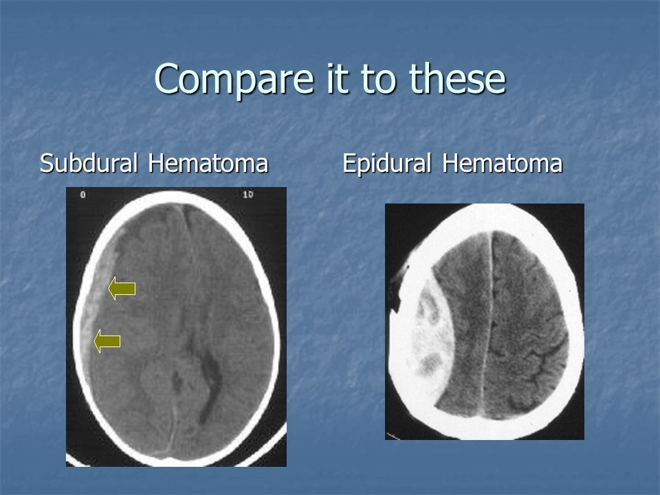 Compare it to these Subdural Hematoma Epidural Hematoma