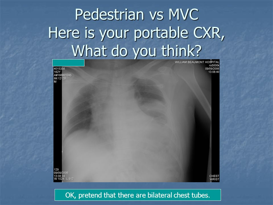 Pedestrian vs MVC Here is your portable CXR, What do you think