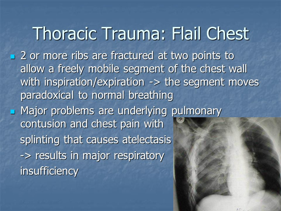 Thoracic Trauma: Flail Chest