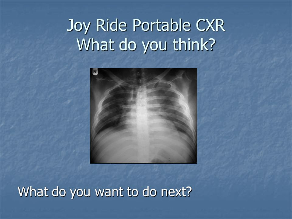 Joy Ride Portable CXR What do you think