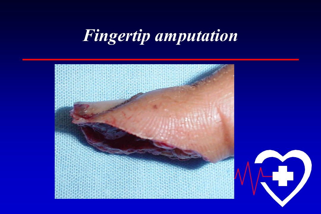 Fingertip amputation