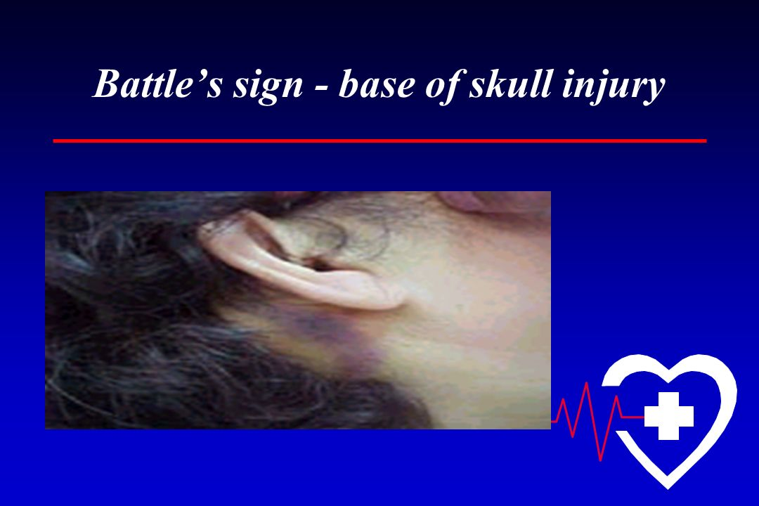Battle's sign - base of skull injury