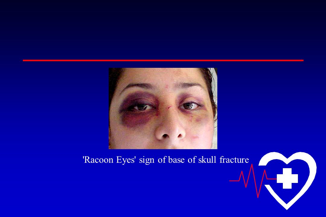 Racoon Eyes sign of base of skull fracture