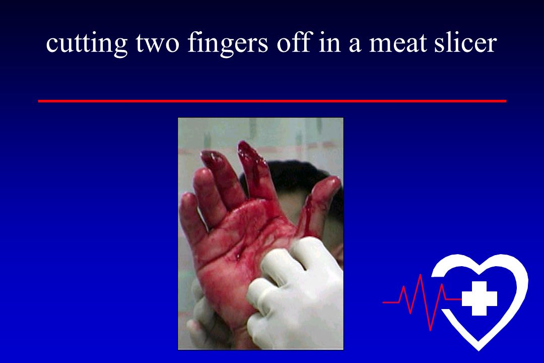 cutting two fingers off in a meat slicer