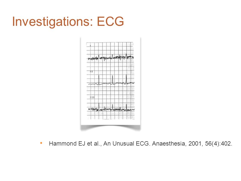 Investigations: ECG A middle-aged man presented with a buzzing sound audible on auscultation.