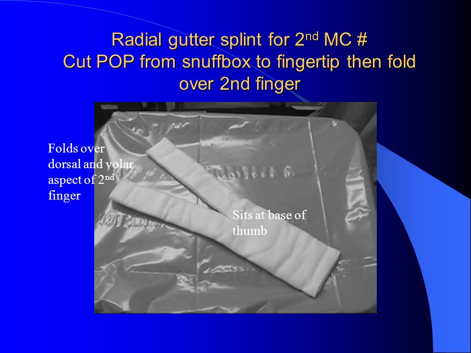 Radial gutter splint for 2nd MC # Cut POP from snuffbox to fingertip then fold over 2nd finger