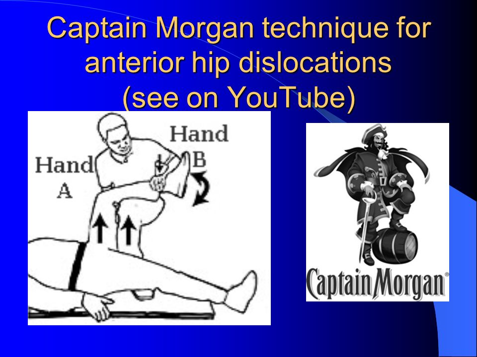 Captain Morgan technique for anterior hip dislocations (see on YouTube)