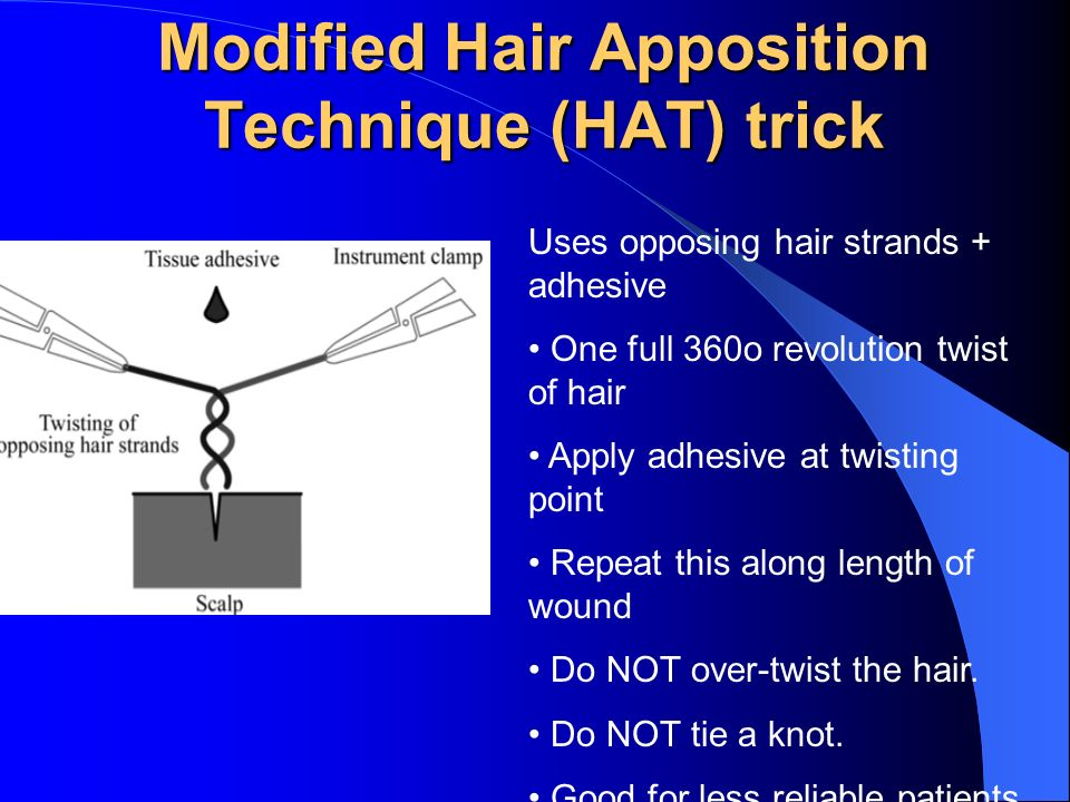 Modified Hair Apposition Technique (HAT) trick