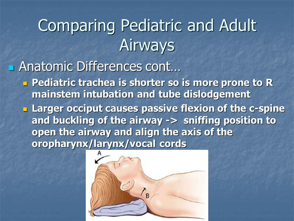 Comparing Pediatric and Adult Airways