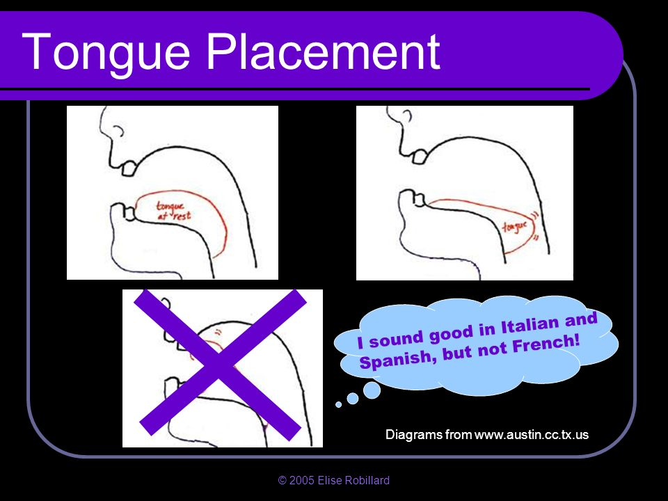 Tongue Placement I sound good in Italian and Spanish, but not French!
