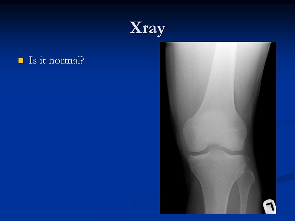 Xray Is it normal