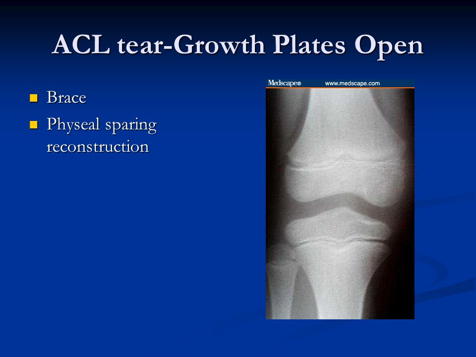 ACL tear-Growth Plates Open