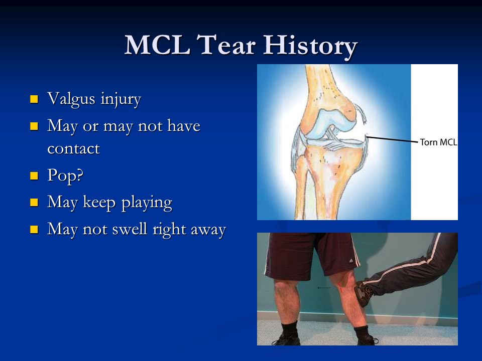 MCL Tear History Valgus injury May or may not have contact Pop