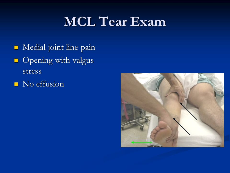 MCL Tear Exam Medial joint line pain Opening with valgus stress