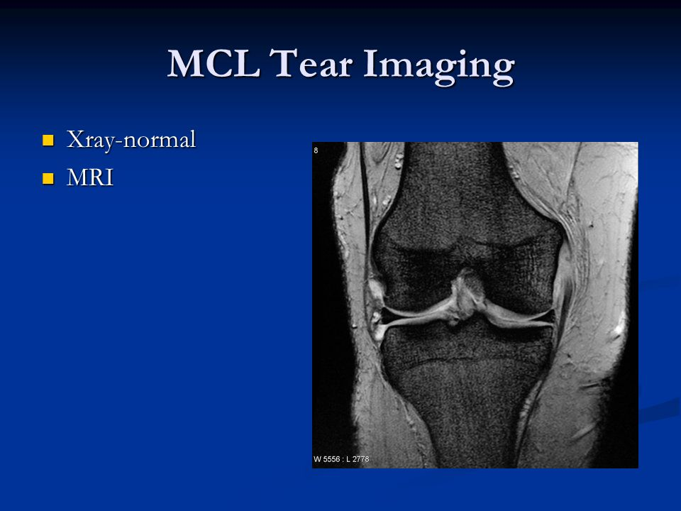 MCL Tear Imaging Xray-normal MRI