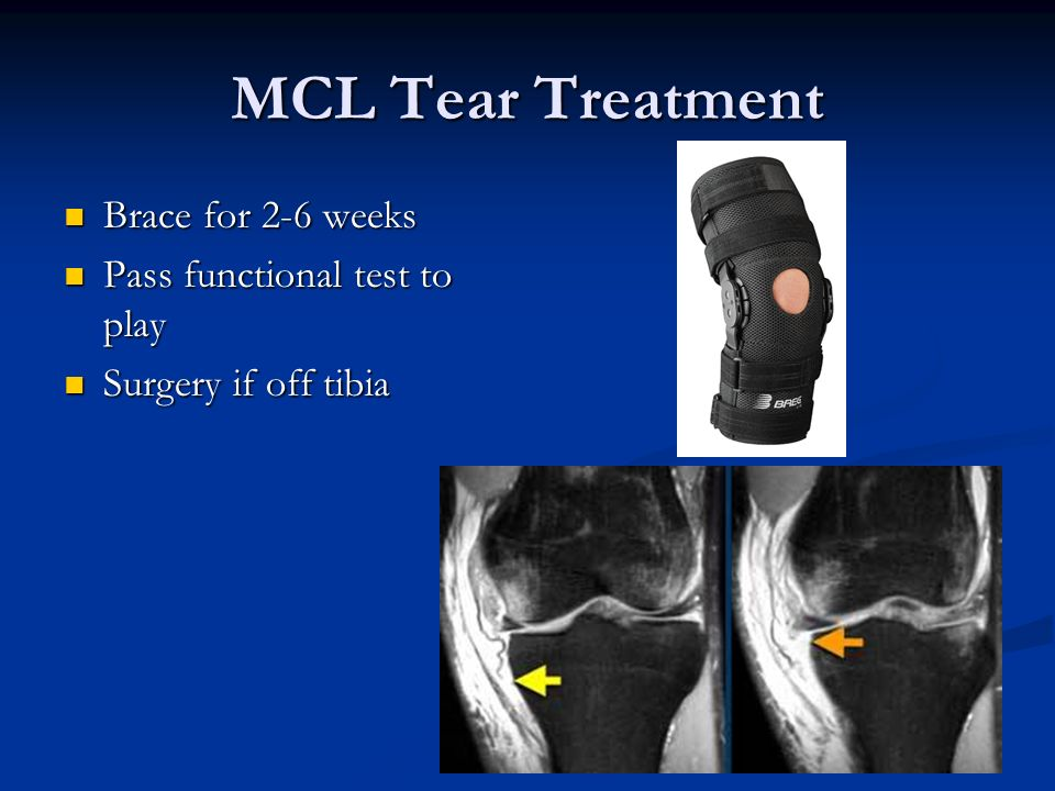 MCL Tear Treatment Brace for 2-6 weeks Pass functional test to play