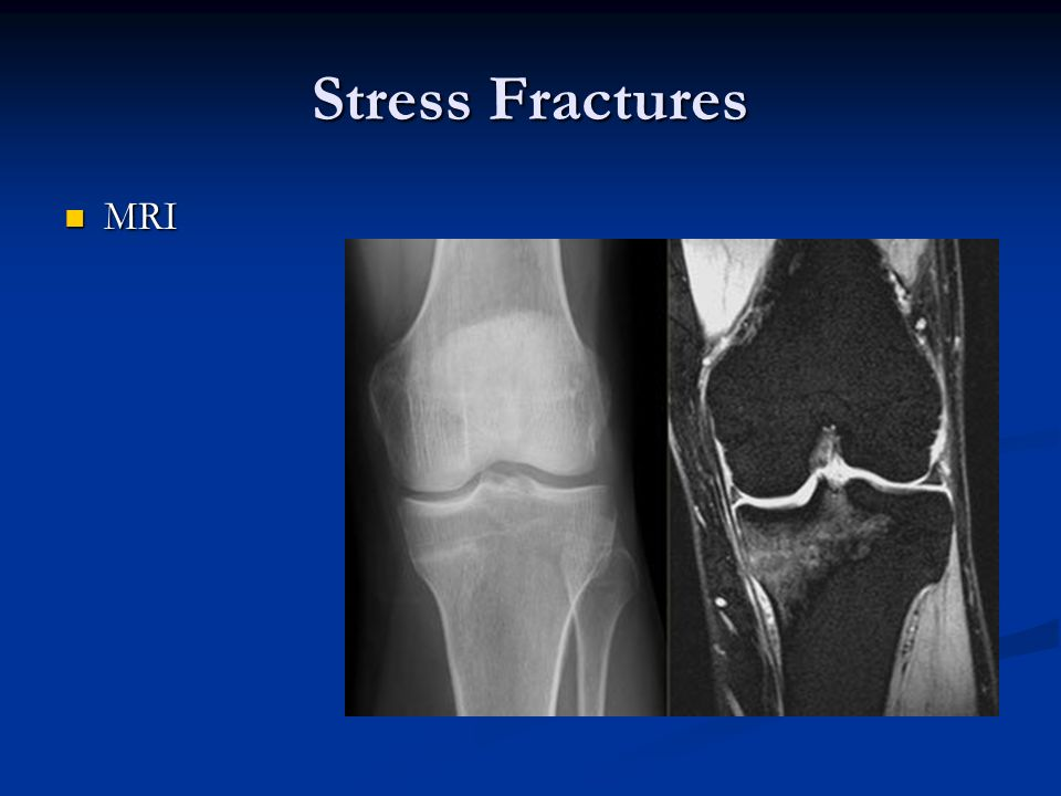 Stress Fractures MRI