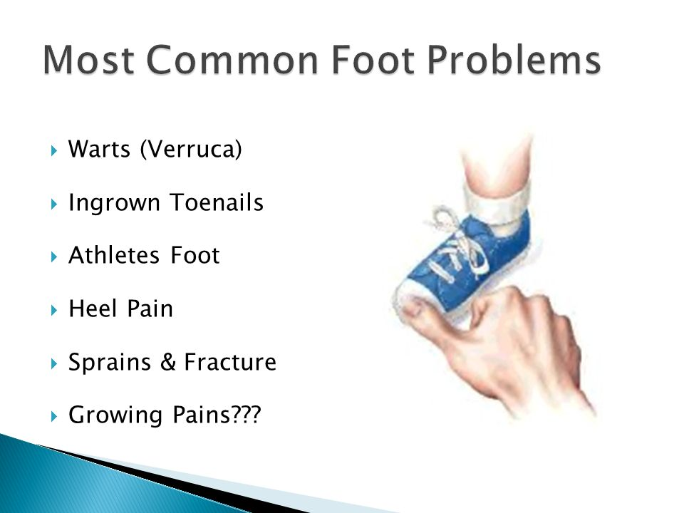 Most Common Foot Problems