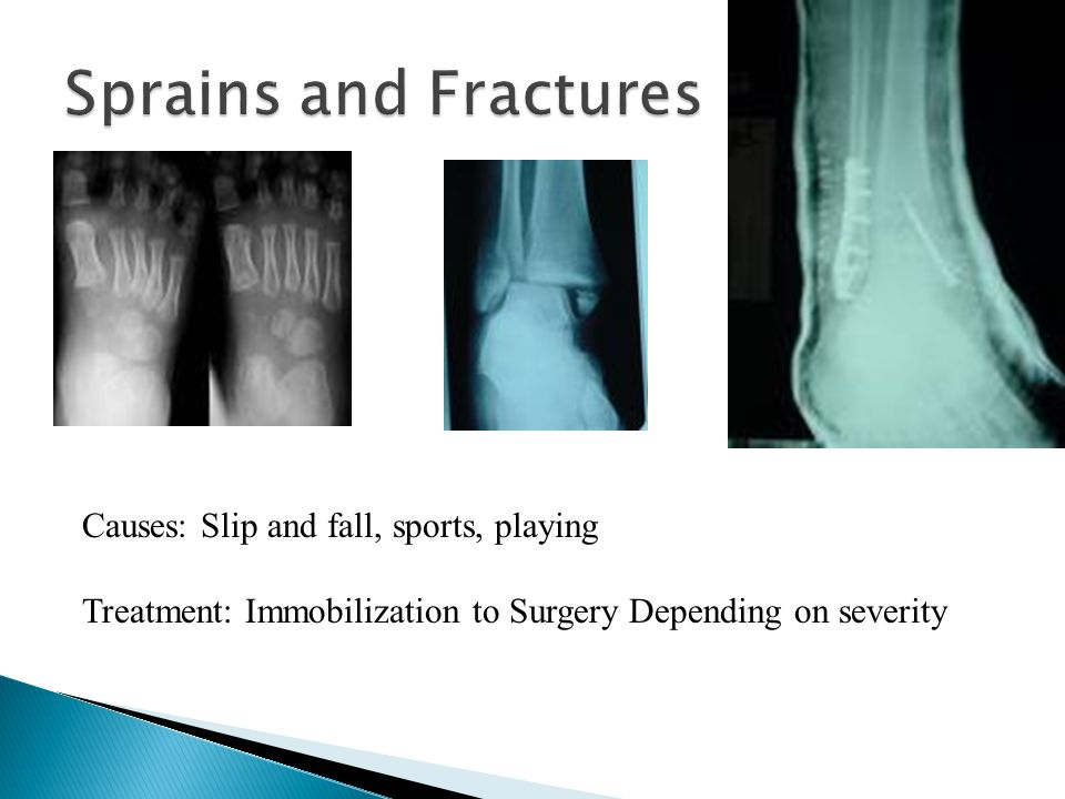 Sprains and Fractures Causes: Slip and fall, sports, playing