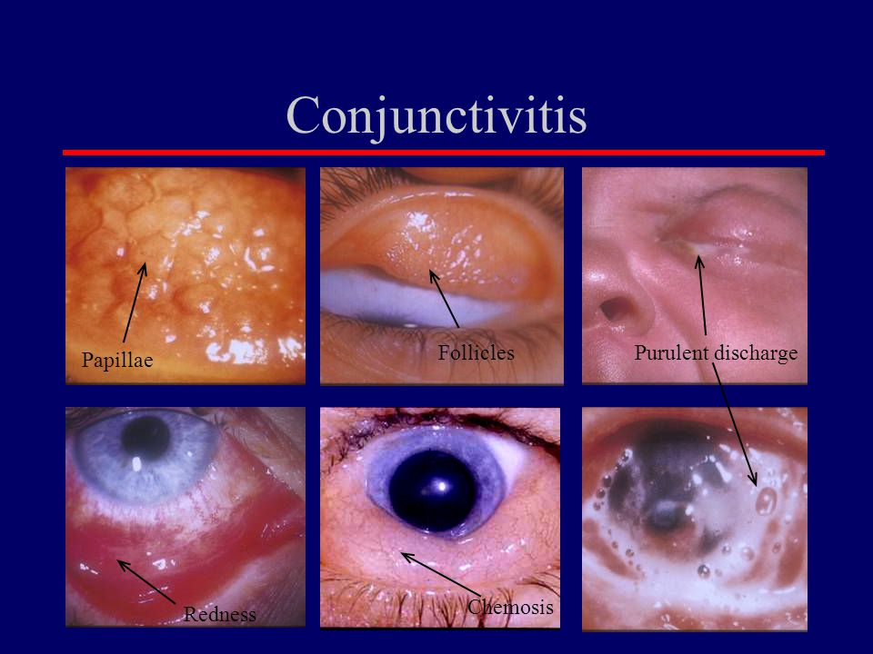 Conjunctivitis Follicles Purulent discharge Papillae Chemosis Redness