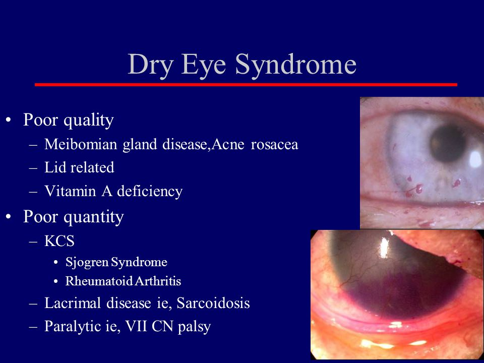 Dry Eye Syndrome Poor quality Poor quantity