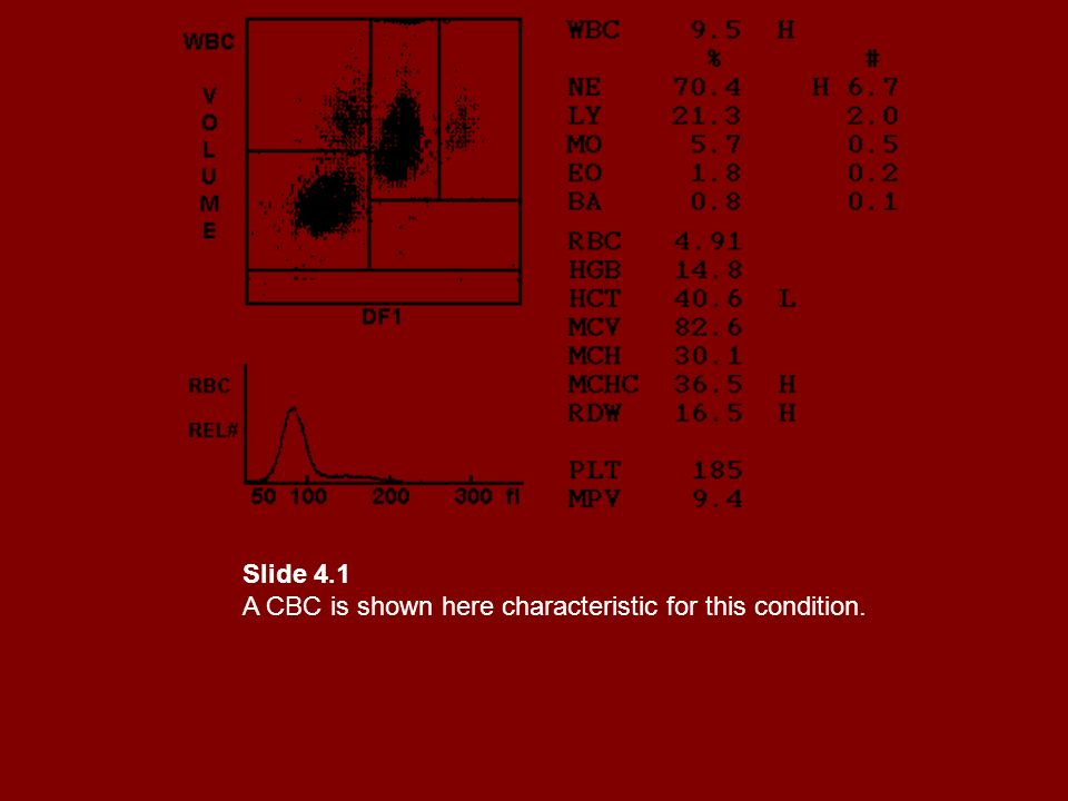 Slide 4.1 A CBC is shown here characteristic for this condition.