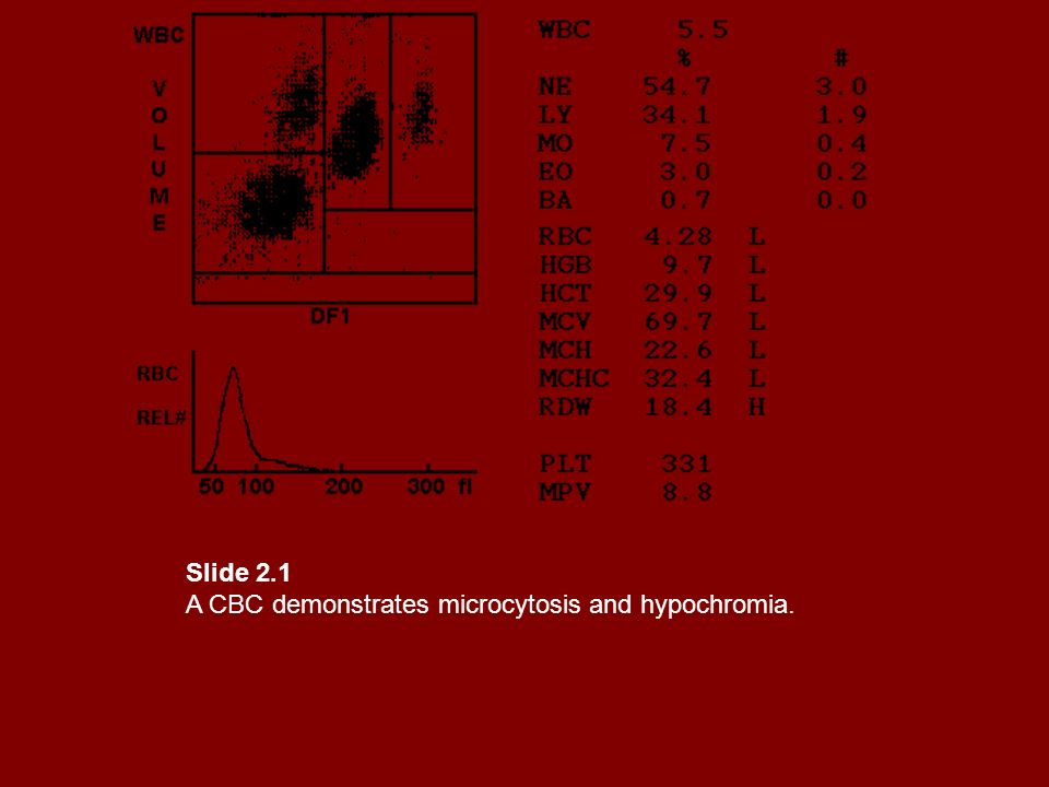 Slide 2.1 A CBC demonstrates microcytosis and hypochromia.