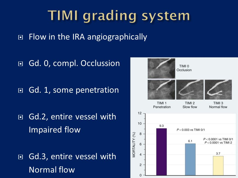 TIMI grading system Flow in the IRA angiographically