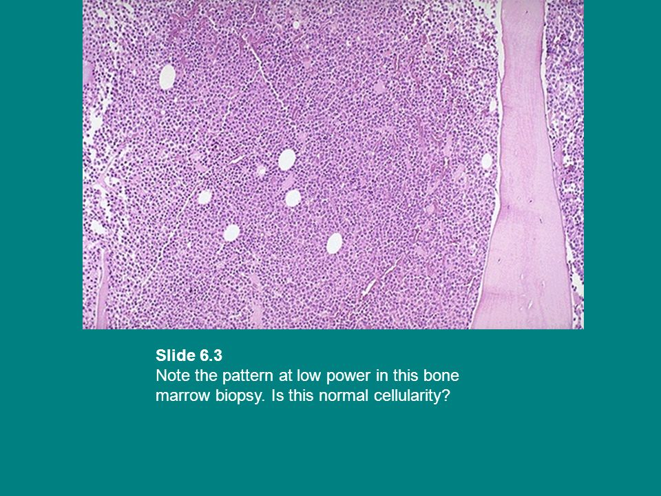 Slide 6. 3 Note the pattern at low power in this bone marrow biopsy