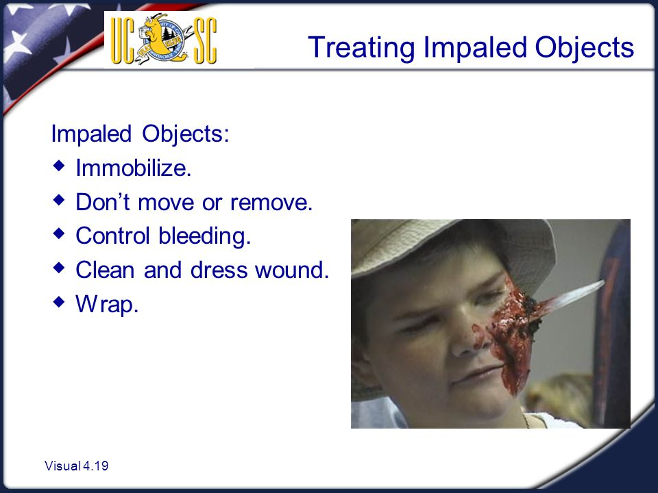 Treating Impaled Objects