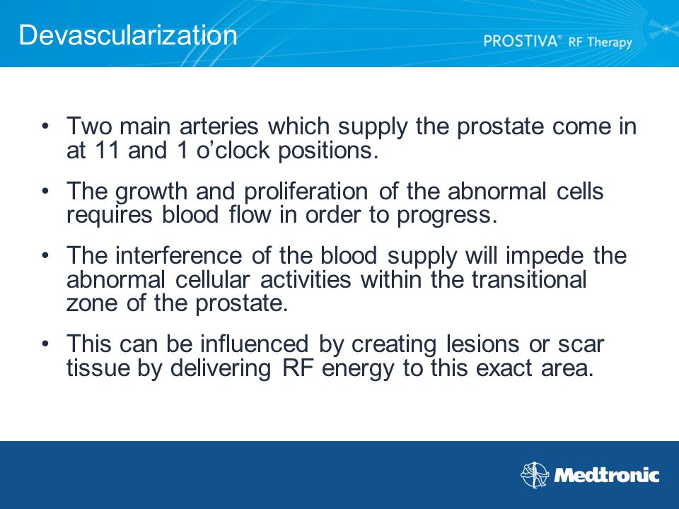 Devascularization Two main arteries which supply the prostate come in at 11 and 1 o'clock positions.