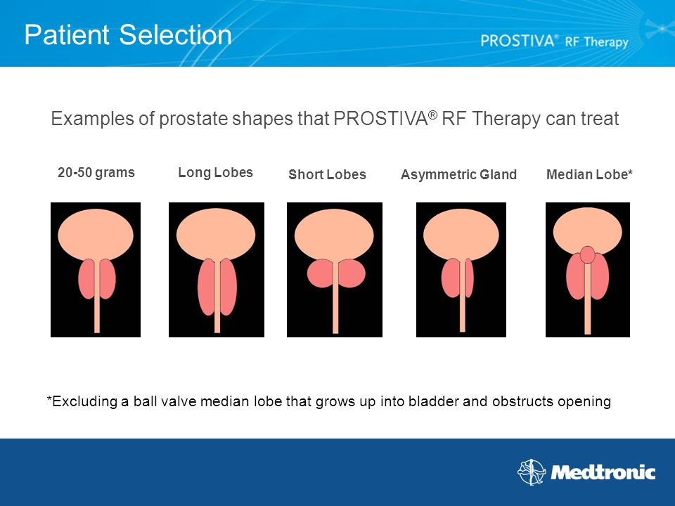 Examples of prostate shapes that PROSTIVA® RF Therapy can treat