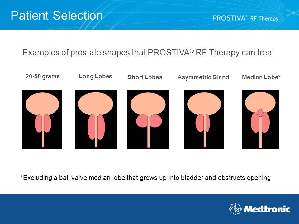 asymmetrical prostate enlargement)