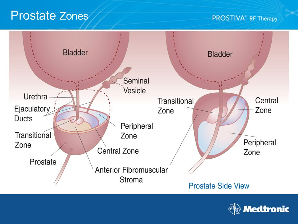 Prostate Zones - Peripheral zone - 70% of prostate