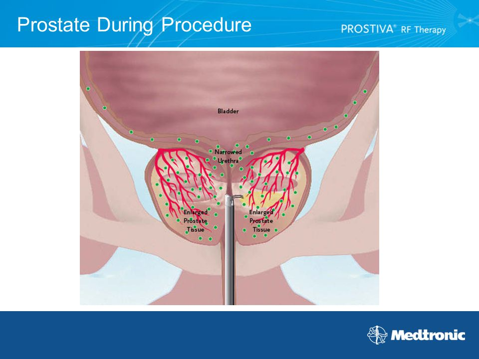 Prostate During Procedure