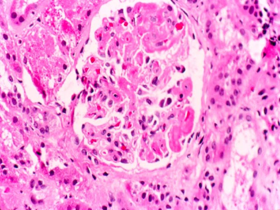 Here is florid example: fibrin thrombi can be seen plugging virtually every capillary loop in this glomerulus