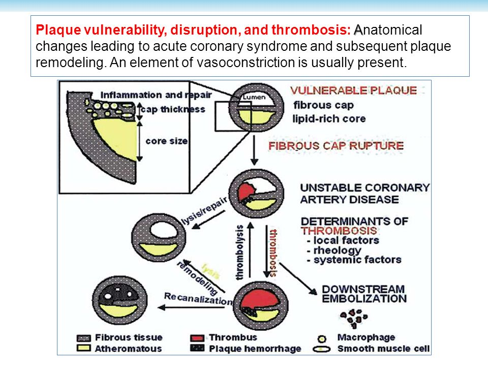 Plaque vulnerability, disruption, and thrombosis: Anatomical changes leading to acute coronary syndrome and subsequent plaque remodeling.