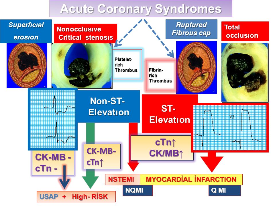 Acute Coronary Syndromes MYOCARDİAL İNFARCTION