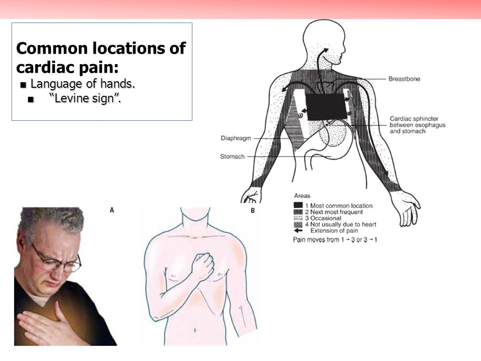 Common locations of cardiac pain: ■ Language of hands. ■ Levine sign .