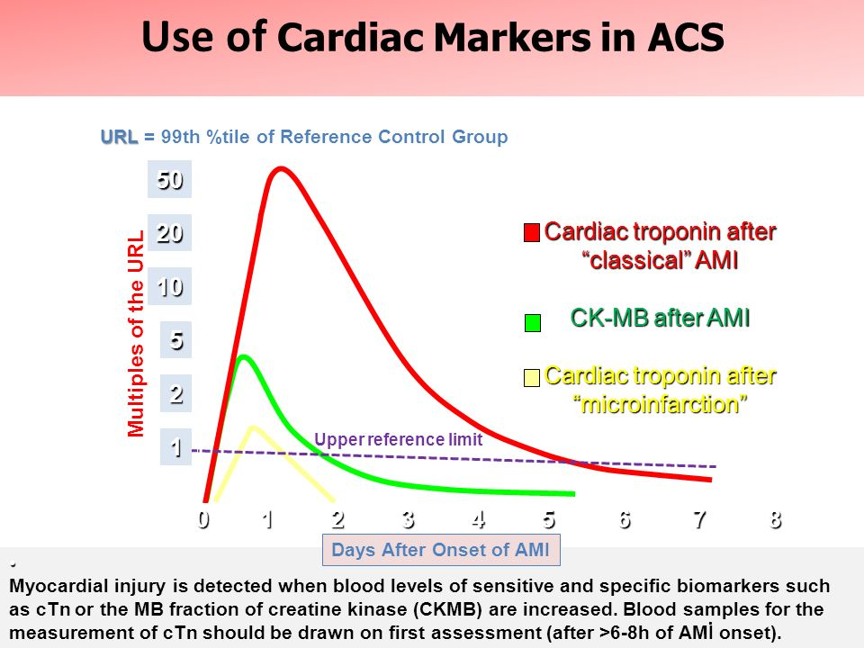 Use of Cardiac Markers in ACS