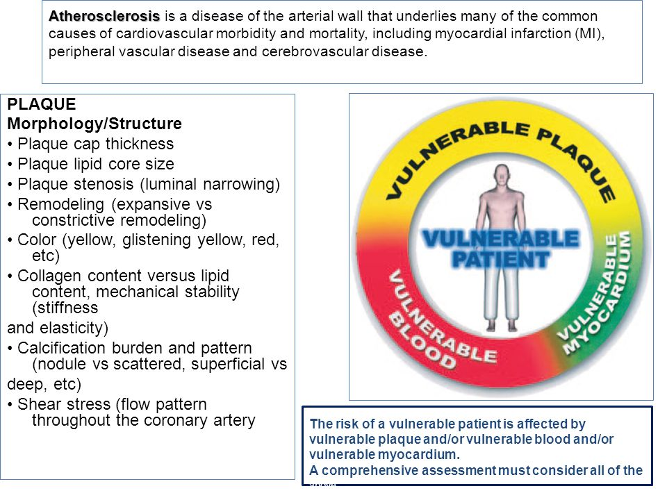 Atherosclerosis is a disease of the arterial wall that underlies many of the common causes of cardiovascular morbidity and mortality, including myocardial infarction (MI), peripheral vascular disease and cerebrovascular disease.