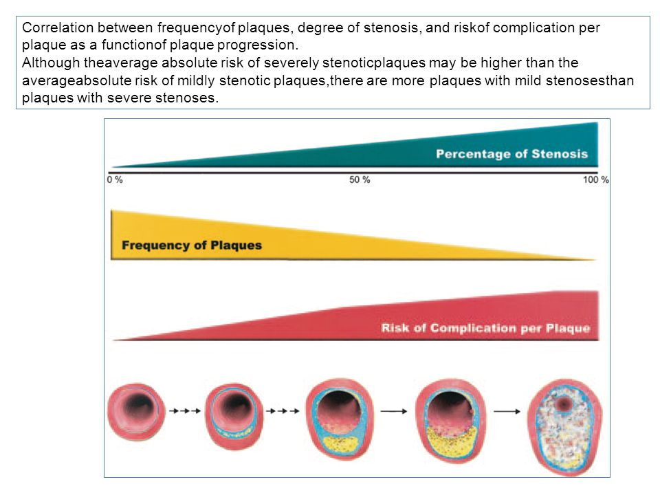 Correlation between frequencyof plaques, degree of stenosis, and riskof complication per plaque as a functionof plaque progression.