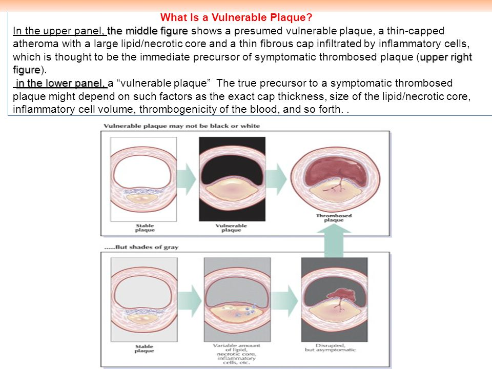 What Is a Vulnerable Plaque