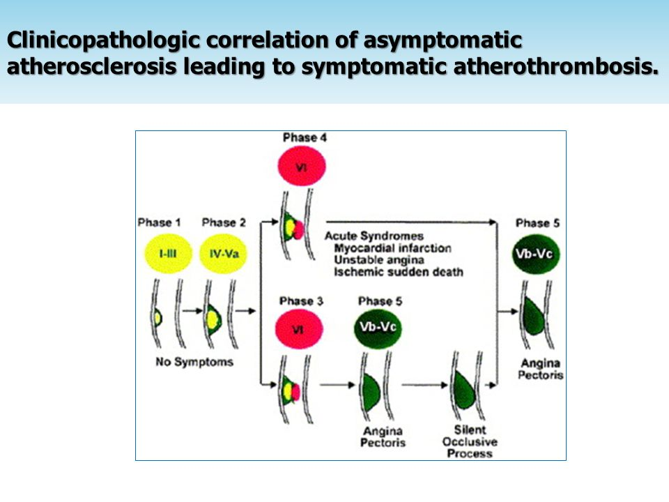 Clinicopathologic correlation of asymptomatic atherosclerosis leading to symptomatic atherothrombosis.