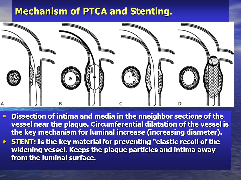 Mechanism of PTCA and Stenting.