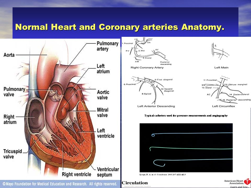 Normal Heart and Coronary arteries Anatomy.
