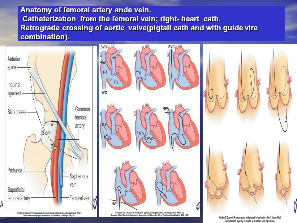 Anatomy of femoral artery ande vein